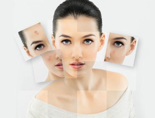 Причины возникновения и методы лечения прыщей на лице