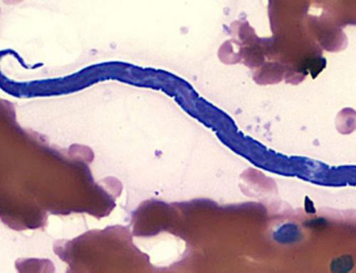 Биорезонасная терапия: лечение от паразитов без рецидивов