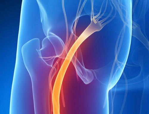 Причины и методы лечения защемления седалищного нерва